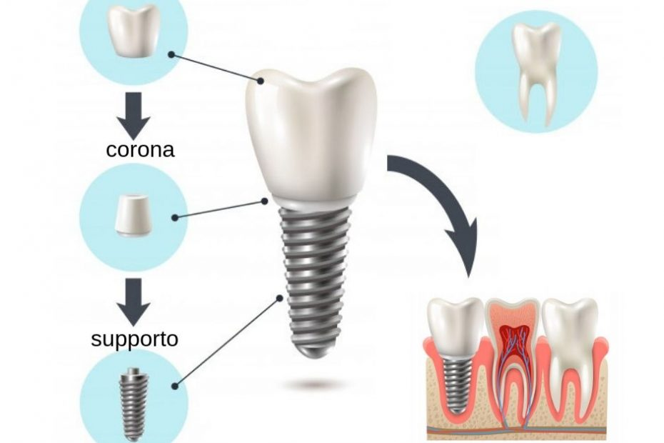 chirurgia-orale-implantologia- dentale - parodontologia