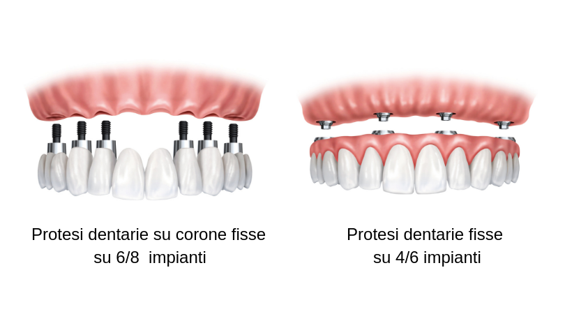 Protesi dentaria fissa o mobile le differenze